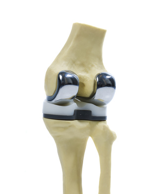 Types of knee replacement implants